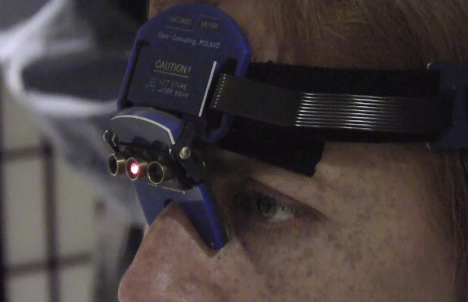 Patient2 laser tabcat